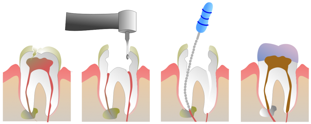 YQR Dental Root Canal