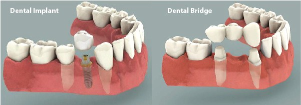 YQR Dental Bridge Implant